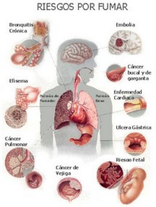 Tabaco: riesgos para la salud - holacom